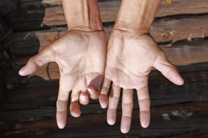 pair of mans hands from above | accident related degloving injuries